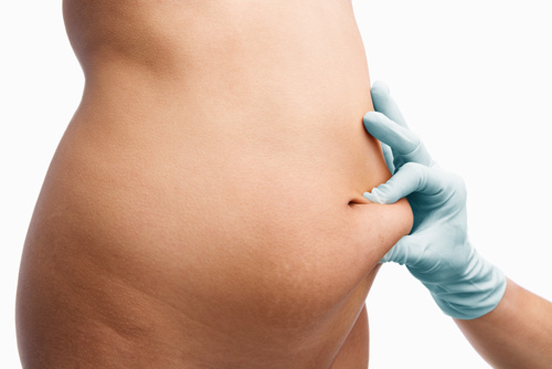 Tummy tuck! Your alliance after weight loss.